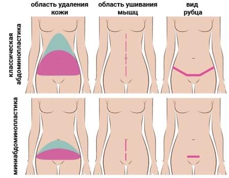 Разновидности абдоминопластики фото