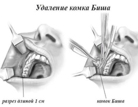 операция по удалению комков, комки биша в казани, комки Биша фото