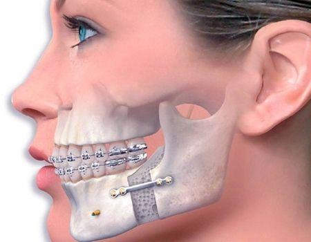 пластика челюсти и подбородка фото